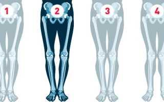О образная кривизна ног как исправить. Упражнения от кривизны ног. Видео: Исправление кривизны ног