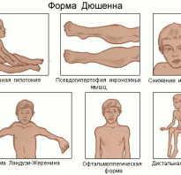 Дистрофия мышц ног лечение. Чем опасна мышечная дистрофия? Условия и причины развития патологического состояния