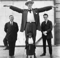 «Король уродов»: как жилось мужчине, у которого было три ноги. Франческо Лентини, человек с тремя ногами (фото)