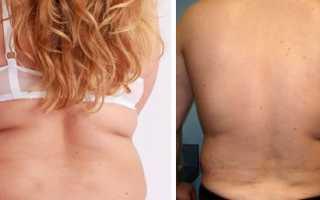 Убрать жир под лопатками. Почему откладывается жир на спине у женщин? Массаж поможет сжечь жир на спине возле подмышек
