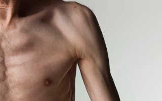Нервно мышечное расстройство. Как ставится диагноз? Методы лечения нервно-мышечных заболеваний