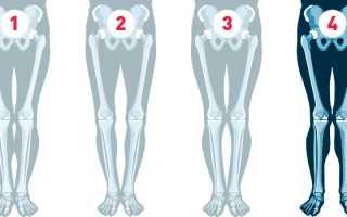 Как исправить х-образные ноги