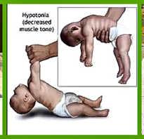 Гипотонус у ребенка 7 месяцев симптомы. Как определить гипертонус, гипотонус и дистонию. Признаки мышечной гипотонии