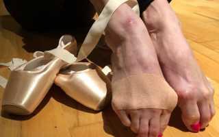 Какие ноги у балерин после пуант. Стопа балерины. Профессиональные травмы. Профессиональные заболевания музыкантов