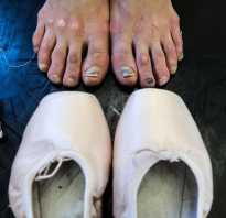 Игры для девочек ухаживаем за ножками балерины. Лечение балерины ноги