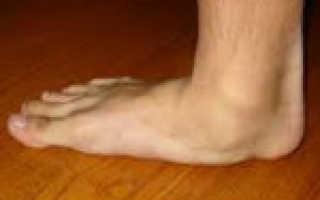 У меня плоскостопие что делать. Плоскостопие — причины, симптомы у взрослых, виды, степени, лечение и профилактика плоскостопия. Причины развития плоскостопия